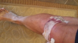 Another ripped apart knee. I think I have a stone caught under the skin though.